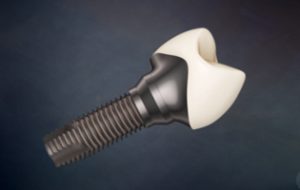 Dental Implants Victoria BC